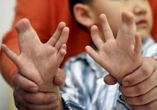 ناهنجاری مادرزادی، یکی از اصلی ترین عوامل مرگ و میر در نوزادان ایرانی
