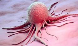 چه افرادی که در معرض سرطان قرار دارند؟ +اینفوگرافی