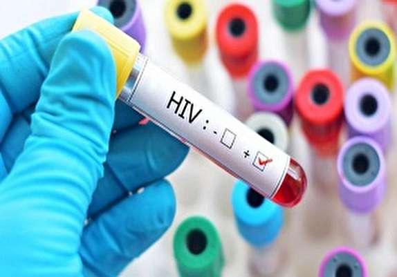 باشگاه خبرنگاران - خدمات رسانی 14 مرکز کنترل بیماری ایدز به شکل رایگان در همدان