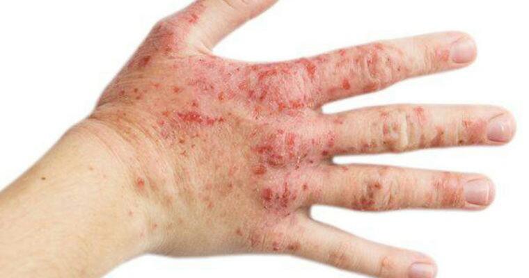 شربتی گیاهی برای دفع سنگ کلیه/ زنان یائسه از مصرف این شربت غافل نشوند