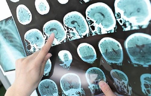 خستگی اولین علامت MS / منظور از ایجاد ترمیم در سیستم عصبی چیست؟