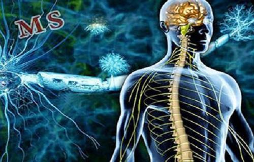 اولین نشانه MS چیست؟/ سلولهایی که قادر به بازسازی خود نیستند