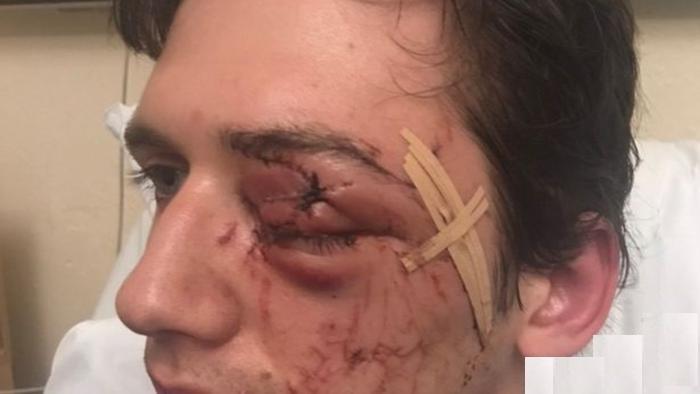مرد دیوانه چشم پسر جوان را در روز تولدش کور کرد + عکس