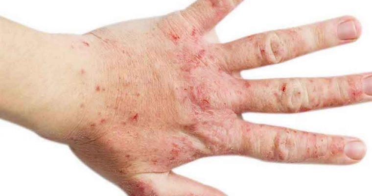 8 درمان خانگی برای اگزما
