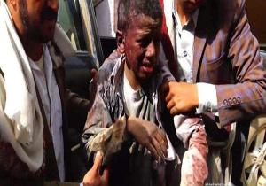 کشته شدن ۱۵۰۰ غیرنظامی در سه ماه؛ گواه جنایات غیرانسانی سعودیها در یمن