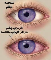علت قرمزی چشم و خطرات ناشی از آن