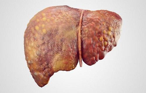 6 ادویه مفید برای تقویت سیستم ایمنی بدن/مضرات حمام کردن در زمان قاعدگی/چگونه به کاهش وزن دست پیدا کنیم؟/چه کسانی دچار کبد چرب میشوند؟