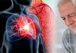 بیماری که به سادگی جانتان را میگیرد/ کرونری قلب (CHD) چیست؟