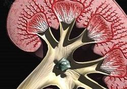 اختلال در فعالیت کلیهها در پی التهاب مویرگهای خونی/ «گلومرلونفریت» گریبانگیر چه کسانی میشود؟