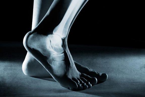 ارتباط عجیب و باورنکردنی ساعت خواب خانمها با شکستگی استخوان