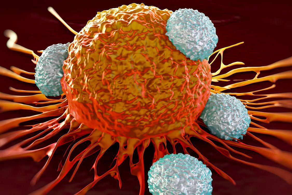هزینه ۳۰۰۰ میلیارد تومانی درمان سرطان در یک سال/ دلیل افزایش آمار سرطان