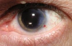 گلوکوما؛ این نام را به خاطر بسپارید/ وقتی ماهیچههای چشمهایتان ضعیف میشود