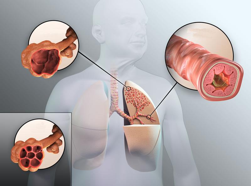 بیماریهای ریوی؛ چگونه میتوان از بروز آسم پیشگیری کرد؟