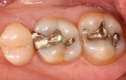 عفونتی خطرناک که در دندان هایتان نهفته است