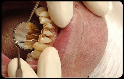 بیماری دهان و دندان