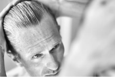 با طاسی خداحافظی کنید/ رشد مو بر بافت آسیب دیده و سوخته پوست سر