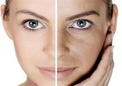 عوامل موثر در تیرگی پوست/ چگونه پوستی سفید و بیلک داشته باشیم؟