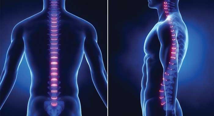۶ حرکت موثر و علمی ورزشی برای درمان قوز کمر