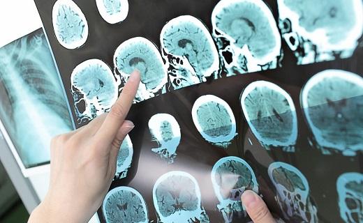 سلول درمانی، امیدی تازه برای بیماران ام اس / قطع مصرف خودسرانه داروها، ممنوع