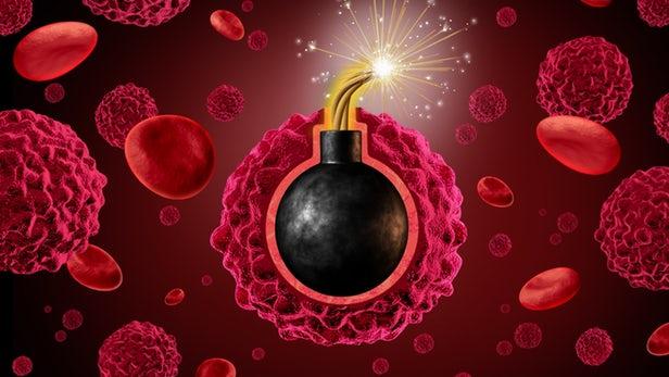 کشندهترین سرطان جهان را بشناسید/ سیگار و قلیان مهمترین علت ابتلا به این سرطان مرگبار
