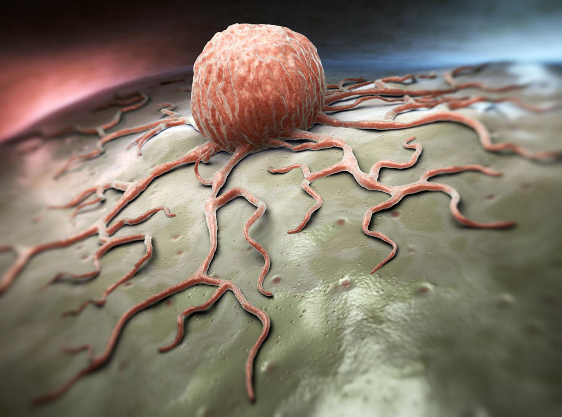 سرطان؛ بیماری کشندهای که شناخته شده نیست