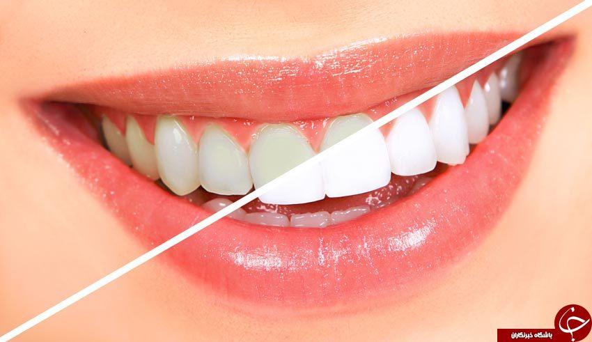 ۶ راه طبیعی سفید کردن دندانها/ موادغذایی که نباید به آنها لب بزنید