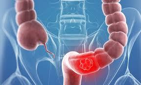 علائم و روشهای درمانی سرطان روده بزرگ/ یبوستهای ناگهانی را جدی بگیرید