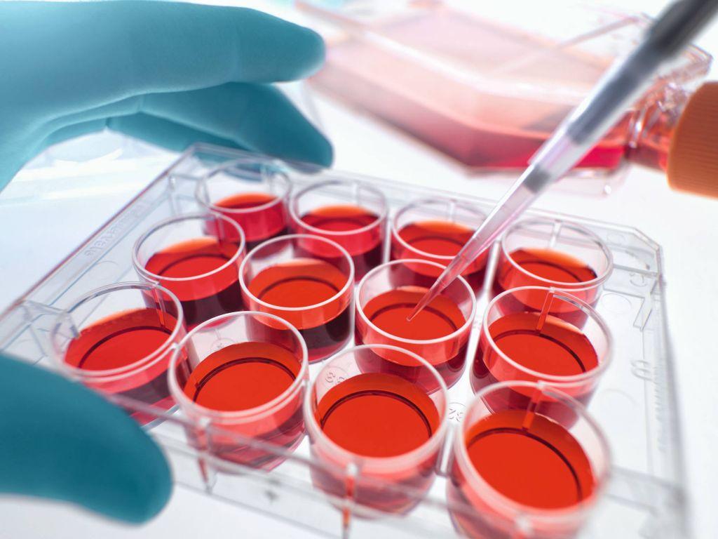 باشگاه خبرنگاران -افزایش ذخیره خون بندناف در بانک خون رویان هرمزگان