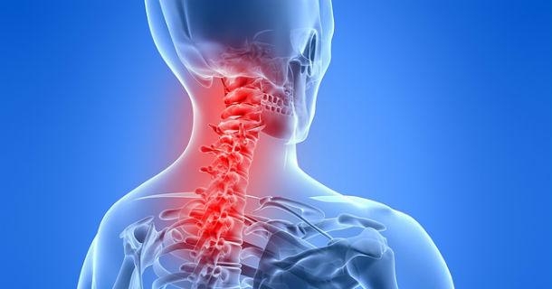 علل بروز آرتروز گردن/ چند تمرین ساده برای تقویت عضلات گردنی