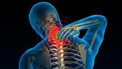 چرا آرتروز گردن به سراغمان میآید؟/ ۳ تمرین ساده برای تقویت عضلات گردنی