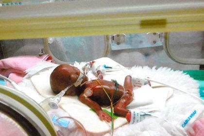 نوزاد بند انگشتی از بیمارستان مرخص شد+فیلم