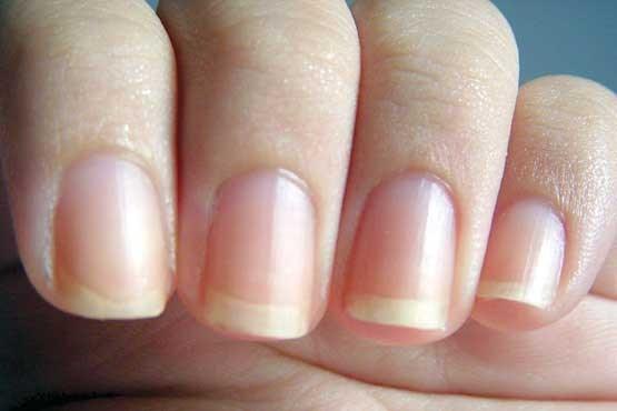 ویتامینی برای تقویت رشد مو/ ترفندهای خانگی برای سفیدکردن دندان ها/ راهکارهای ساده برای زیبایی ناخنها