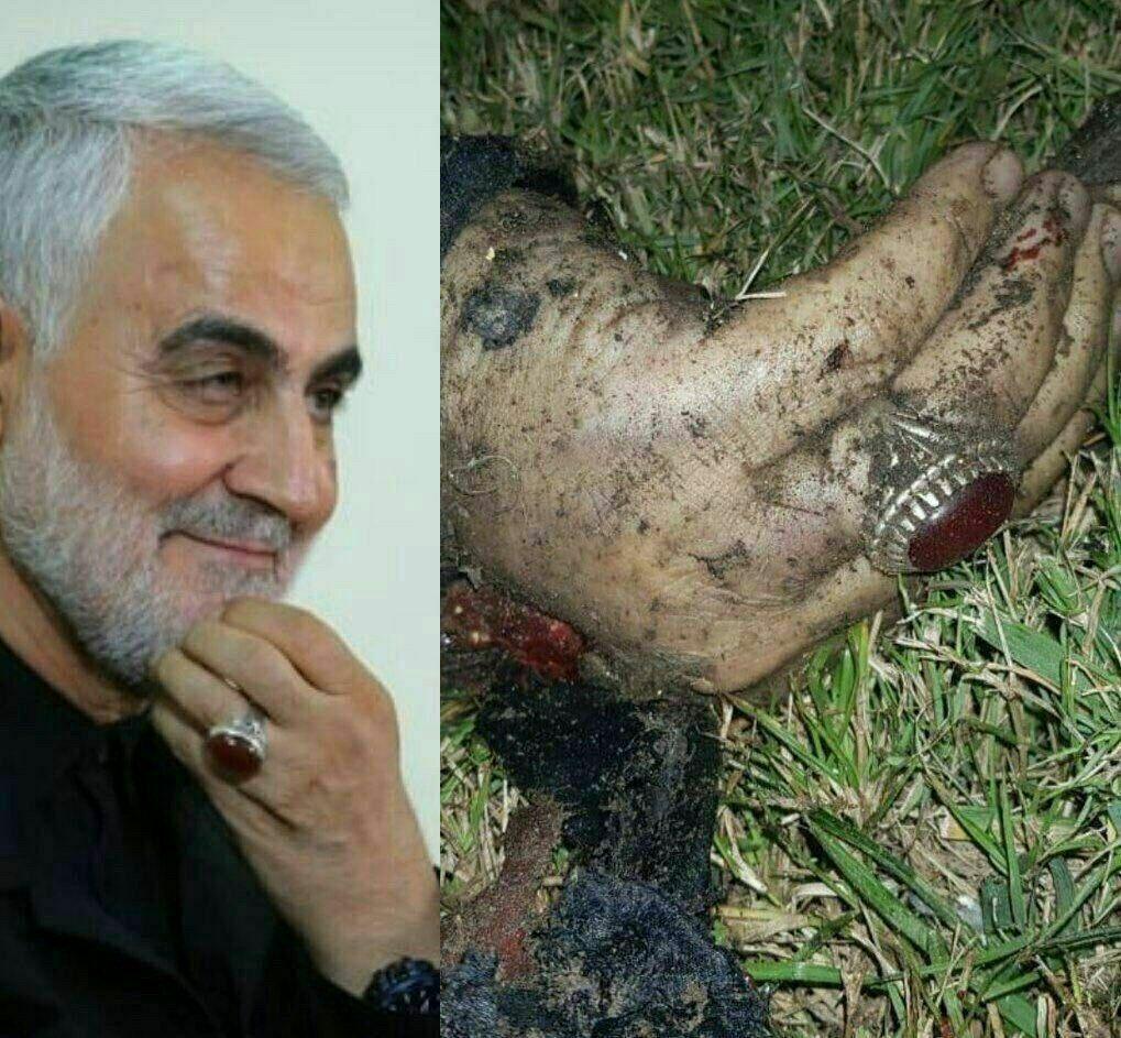 انشار اولین تصاویر از شهید سردار سلیمانی پس از حمله تروریستی بامداد