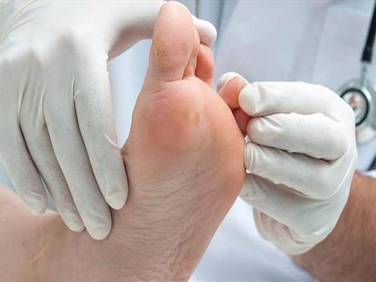 ساخت پماد گیاهی برای درمان زخم پای دیابتی
