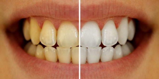 بدرنگ شدن دندانها به چه علت است؟