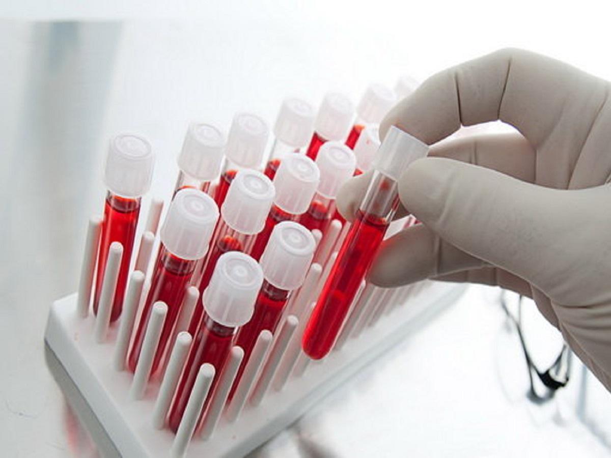 پایان ناباروری با سلولهای بنیادی خون قاعدگی