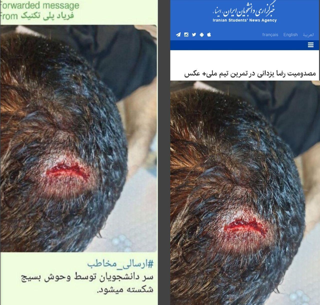 پروژه خشونت سازی اینبار با تصاویر مسدومیت کشتی گیر ایرانی