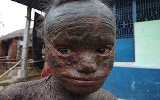 ظاهر عجیب پسر بچه 10 ساله به دلیل بیماری نادر