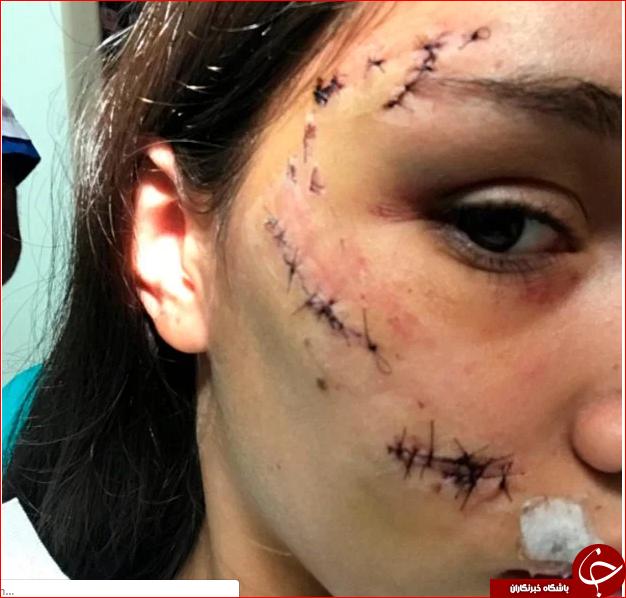 اقدام خطرناک دختر جوان در گرفتن عکس یادگاری با سگ!