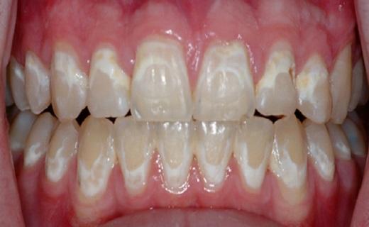 عوامل تاثیرگزار بر رنگ دندان ها