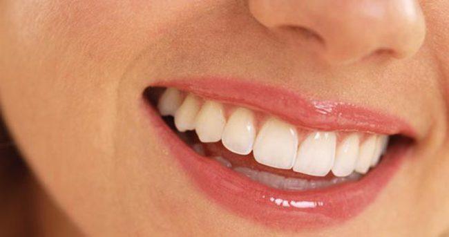 عوامل تاثیرگزار بر تغییر رنگ دندان