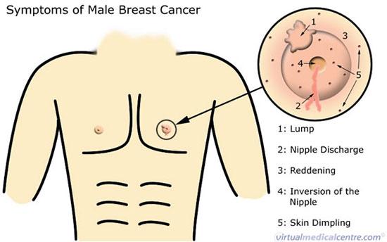 نشانههای سرطان سینه در آقایان