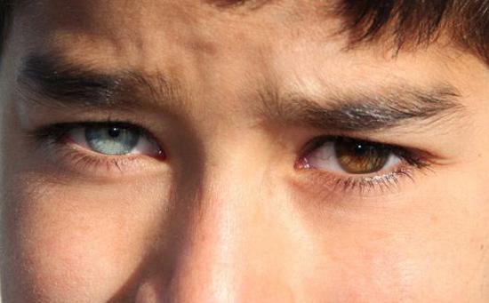 ستارههای معروفی که دو رنگ چشم متفاوت دارند!