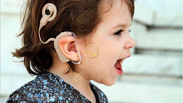 کاهش قیمت کاشت حلزون بازگشت شنوایی را دو چندان کرد