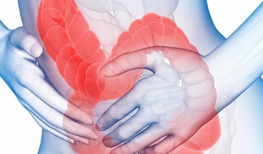 بیماری سندروم روده تحریک پذیر را بیشتر بشناسید