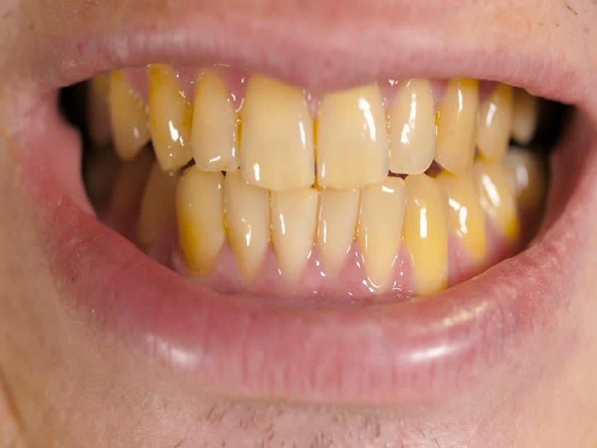 عابد/ کدام خوراکیها منجر به زرد شدن دندانها میشود؟