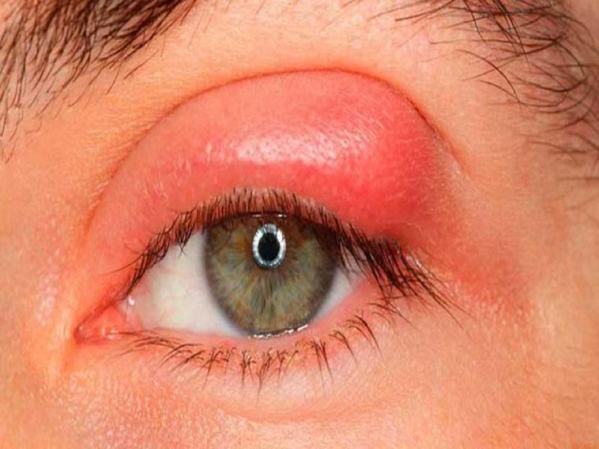 بیماری چشمی که با تجمع میکروبها همراه است!