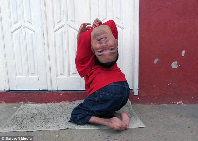 این مرد با سر واژگونش خبرساز شد! + تصاویر
