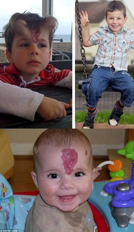 ۶ عمل جراحی عجیب که در آنها قسمتهایی از بدن به غیرمنتظرهترین جاهایی که میشود تصورش کرد، پیوند زده شدند!