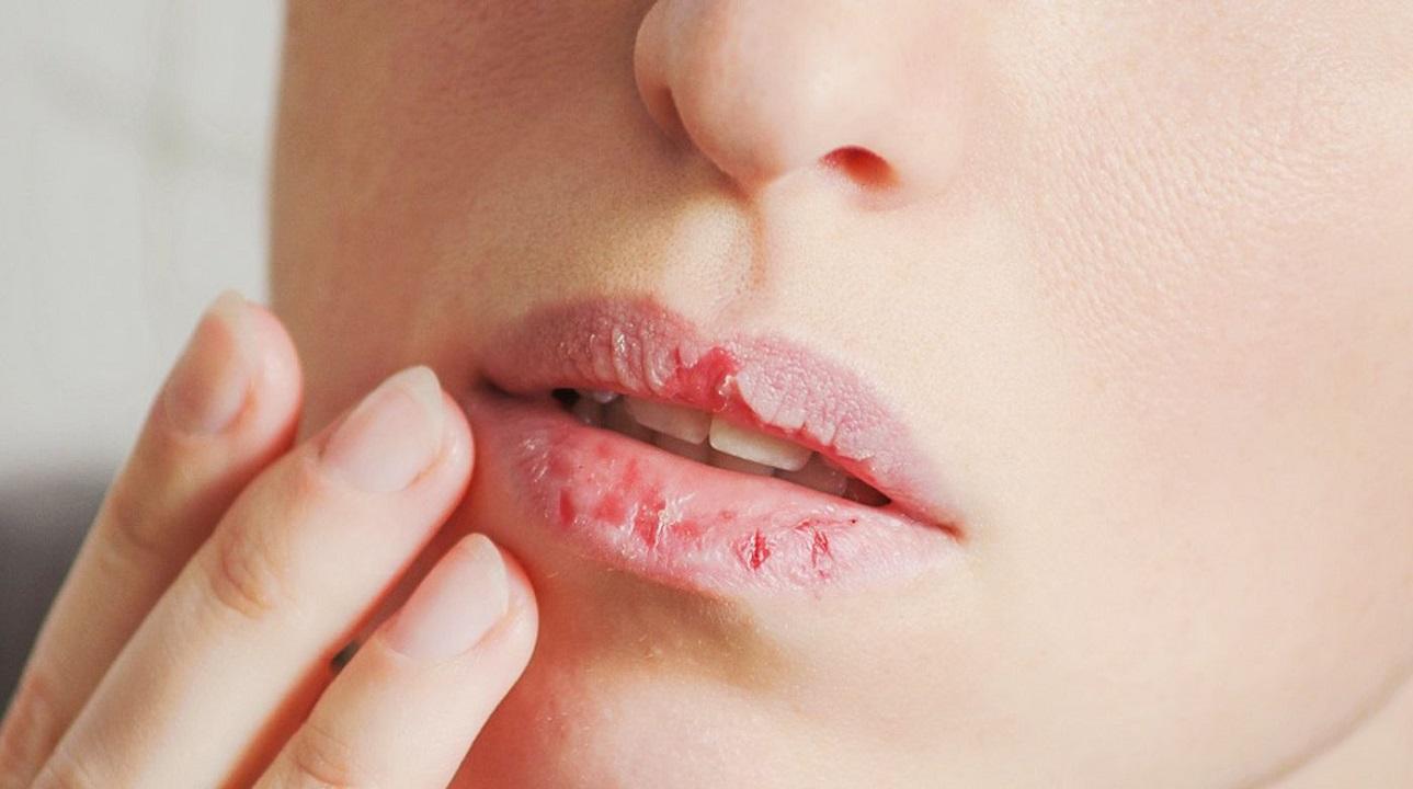 اتونشر عید// ویروس کرونا؛ آیا خشکی دهان از علائم ابتلا به آلودگی است؟